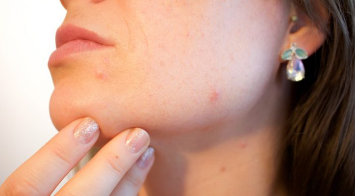 Here's How You Can Treat Menopause-Related Acne